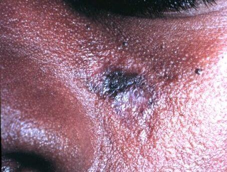 lupus eritematos discoid fata african afroamerican
