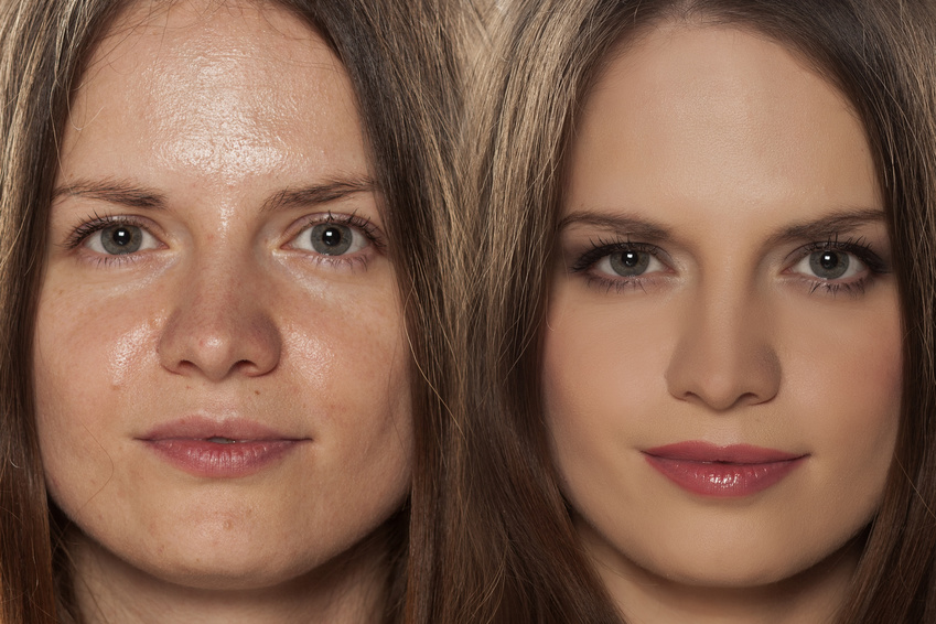 seboreea femeie piele lucioasa uleioasa hiperseboree
