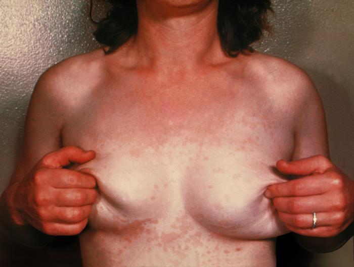 pitiriazis versicolor clinic foto