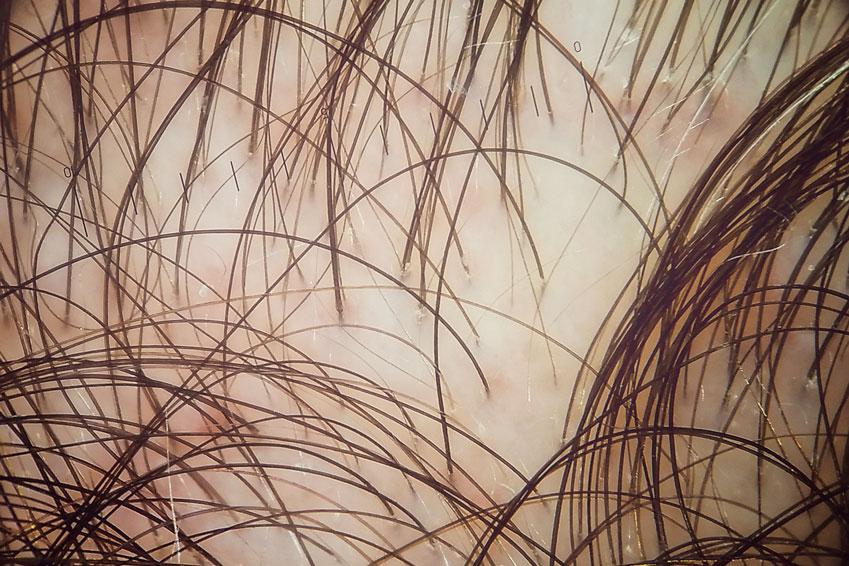 trichoscopie foto featured scalp image dermatoscopie