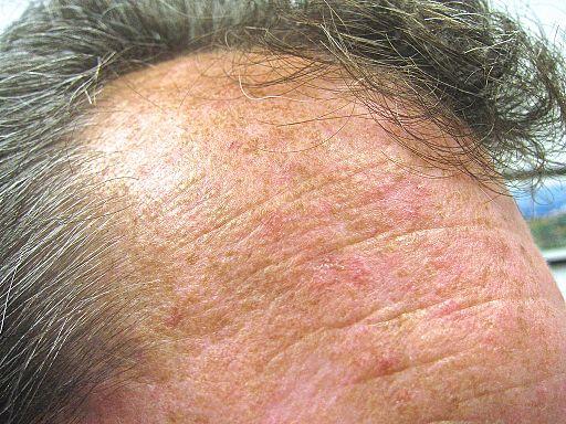 imagine foto keratoze actinice frunte