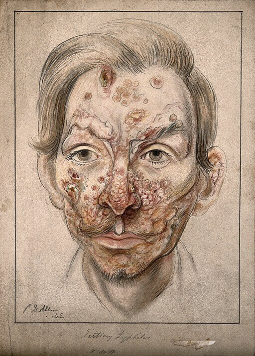 sifilis avansat imagine desen arhiva