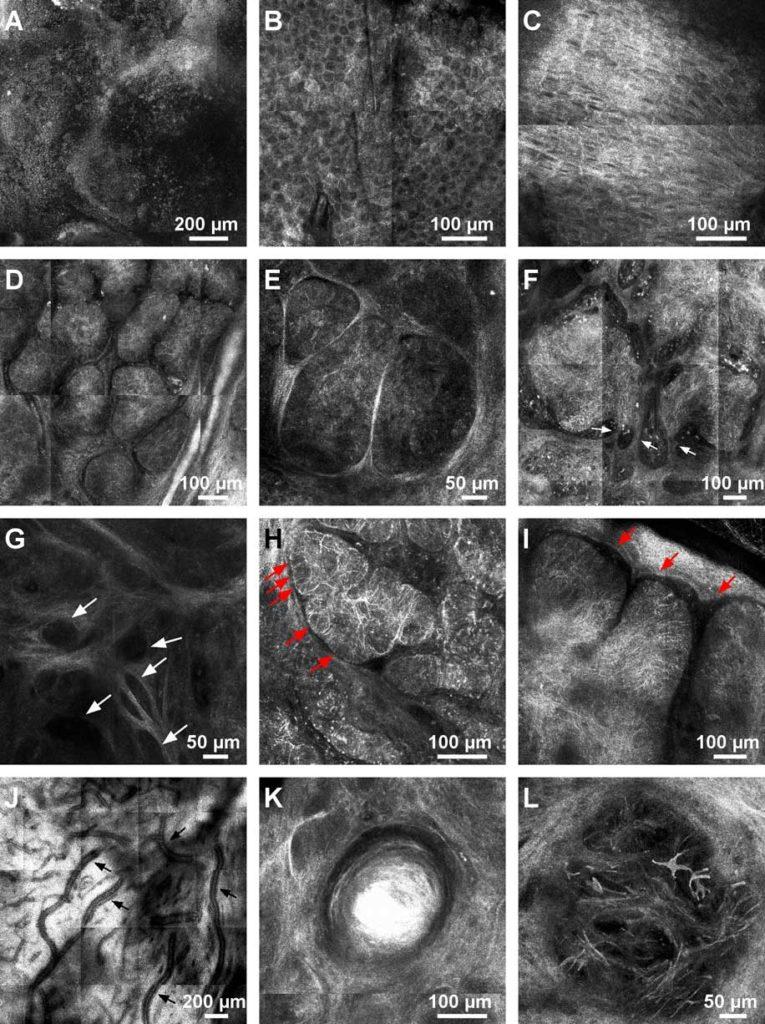 aspect confocal carcinom bazocelular