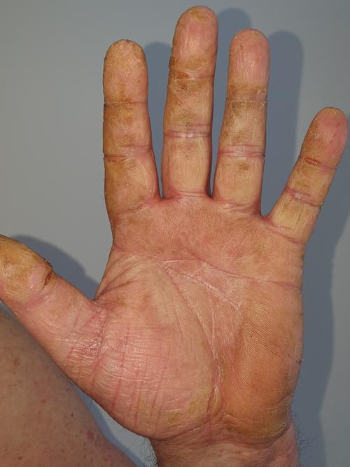 dermatită între degete