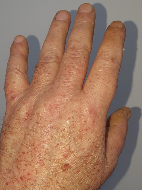dermatita alergică între degete