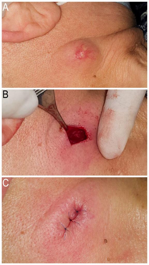 chisturi sebacee - operatie