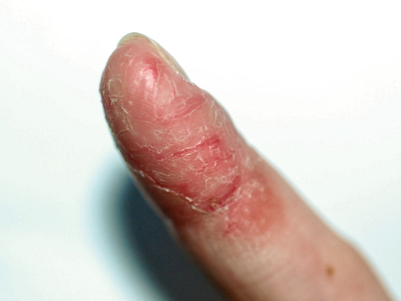 Dermatită între degete - Dermatită între degete
