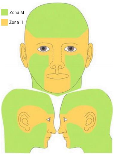 carcinom bazocelular zone de risc