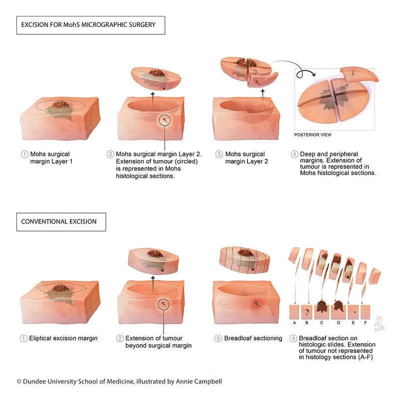mohs carcinom bazocelular